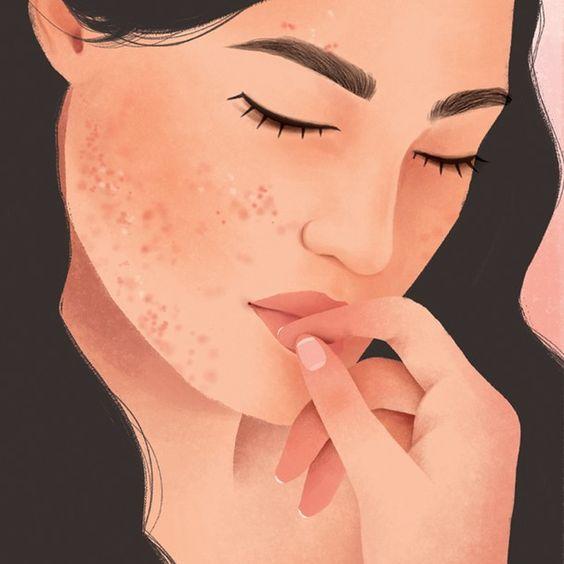 Nguyên nhân nào khiến mụn ẩn xuất hiện trên da mặt?